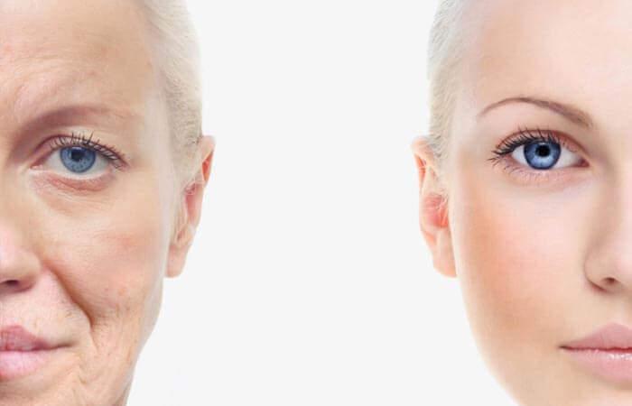 Indblik – hvordan ældes vores hud?