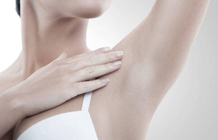 Excessive sweat treatment